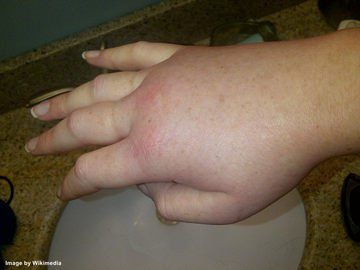 How long does swelling last after hand surgery?